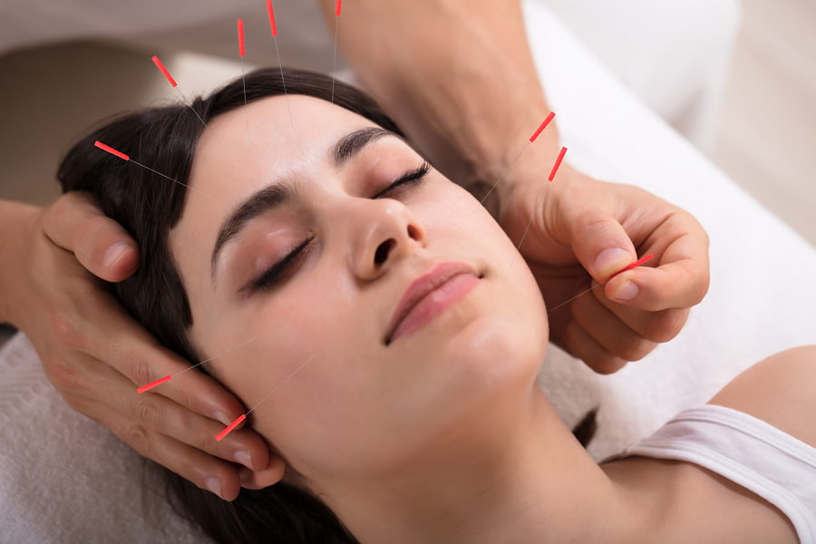 Cosmetic acupuncture in surrey treatments