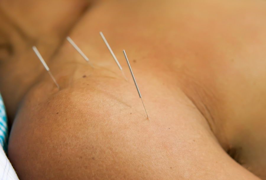 Acupuncture treatment in Surrey